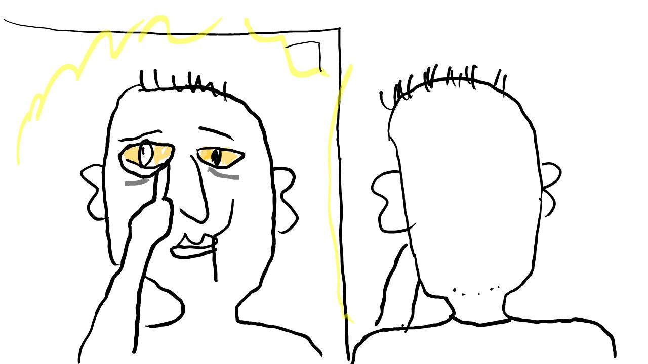 患者背景を事細かに説明するよりも、鏡の前で老人が自分の顔を見ている、その症状等で、すべてがわかる。多くの情報が1枚の絵の中に集約されている。